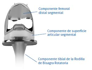 Sistema segmental Zimmer